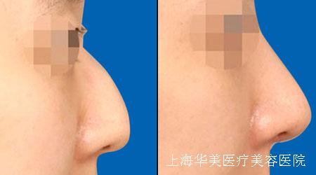 驼峰鼻整形危险吗