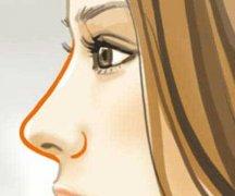 哪些原因会导致硅胶假体隆鼻透光?